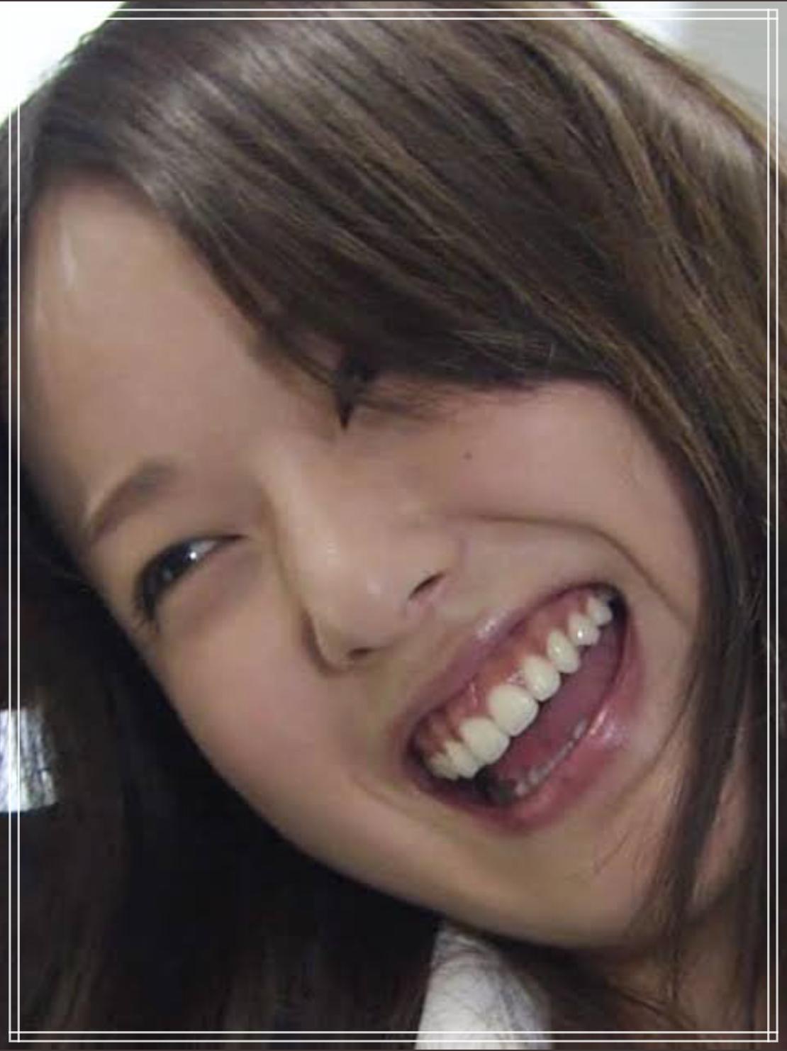 ガミースマイルの戸田恵梨香