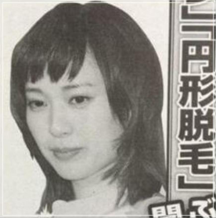 円形脱毛症の戸田恵梨香