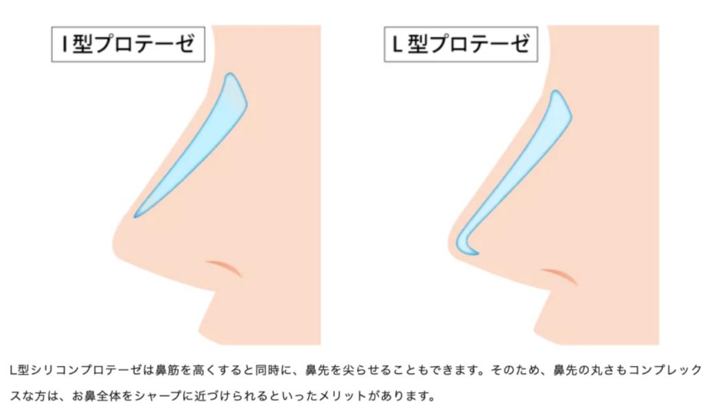 鼻筋プロテーゼとは