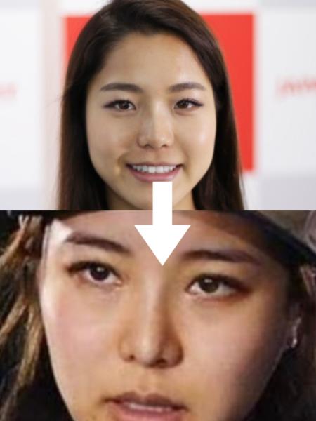 高梨沙羅さんの鼻変化