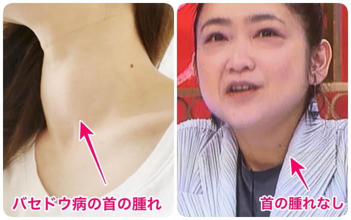 池脇千鶴首の腫れ