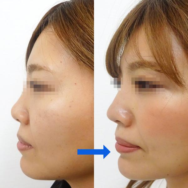 鼻プロテーゼ