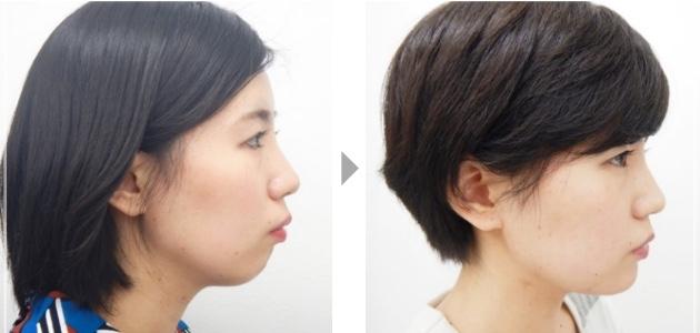 顎プロテーゼ
