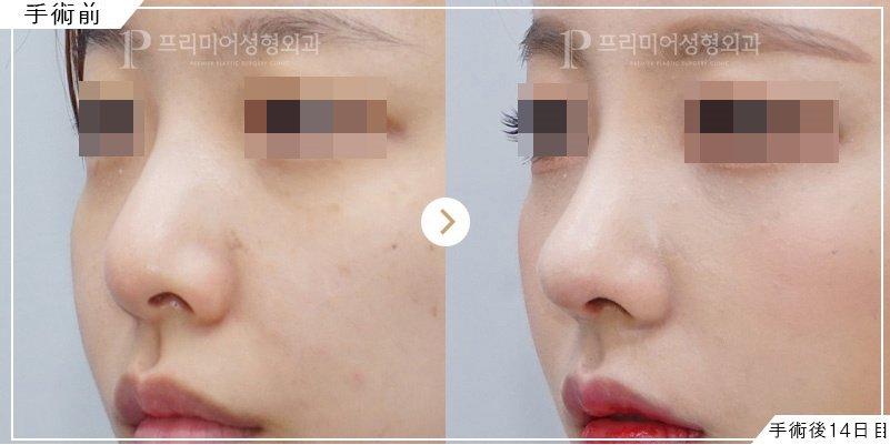 鼻のプロテーゼ事例
