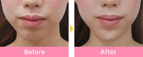 顎ヒアルロン酸の事例