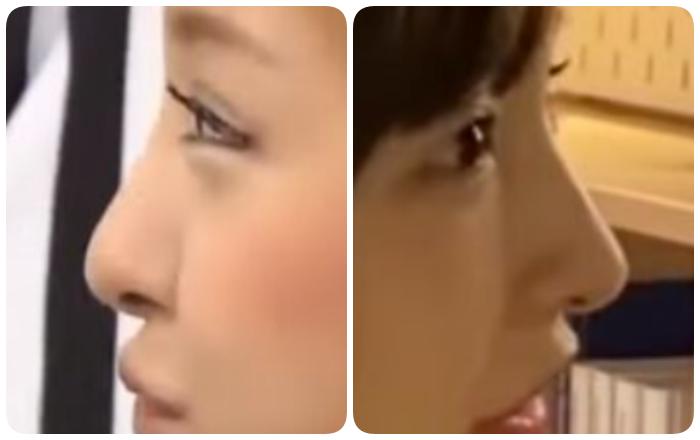 板野友美の鼻の変化