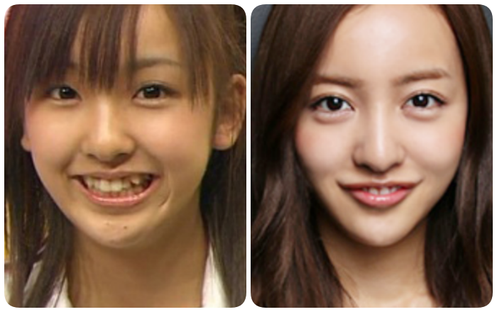 板野友美の唇の変化