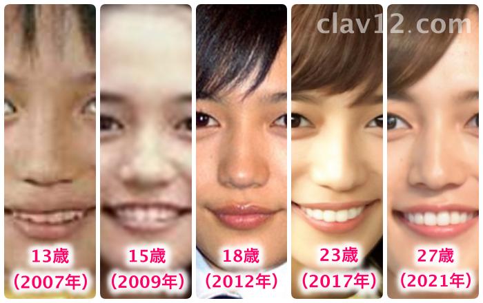 川口春奈の鼻の変化