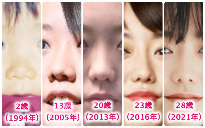峯岸みなみの鼻の変化