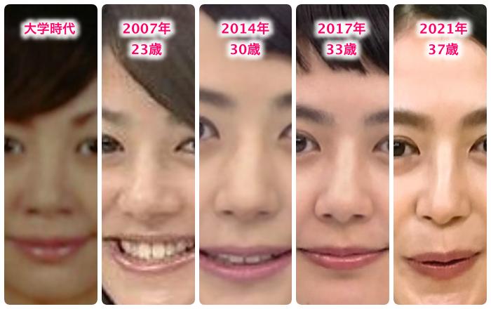 夏目三久の鼻の変化