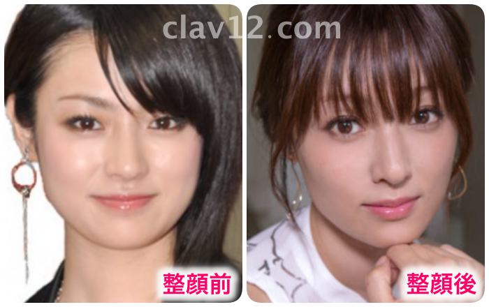 深田恭子の整顔前後比較