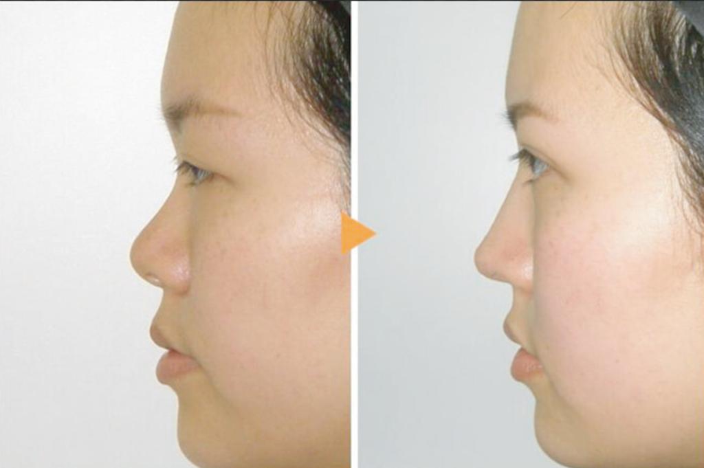 鼻プロテーゼの鼻の変化