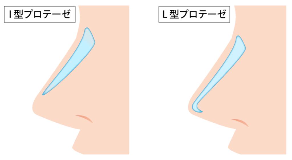 鼻プロテーゼとは