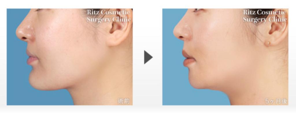 下顎骨切り術