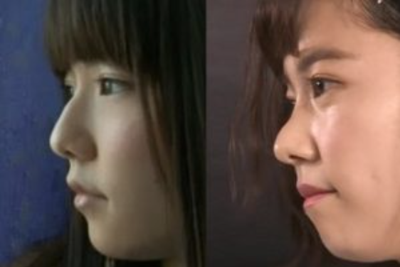 島崎遥香さんの鼻の変化