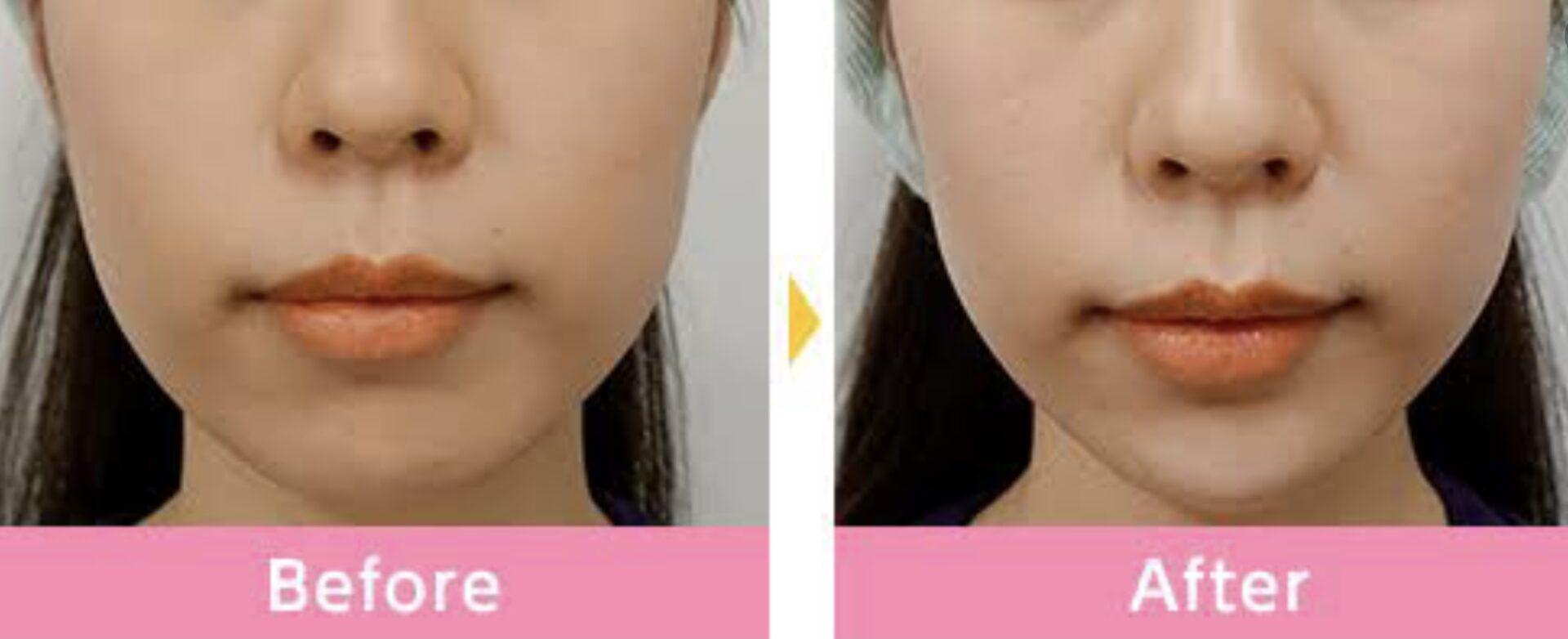 顎ヒアルの写真