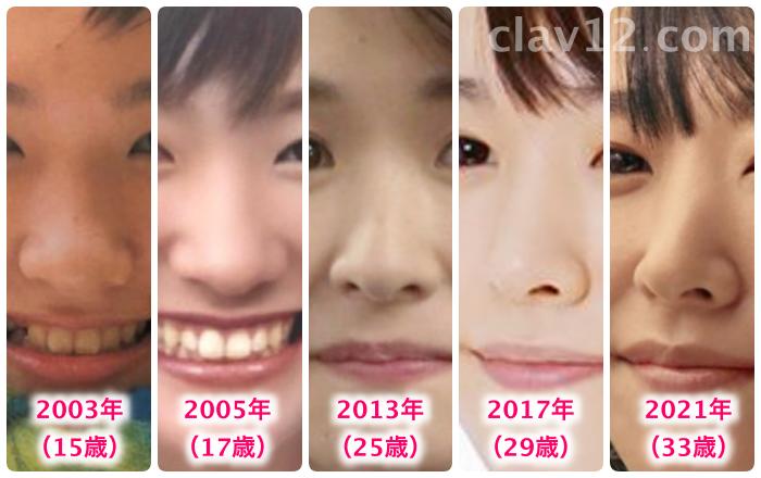 新垣結衣の鼻の変化