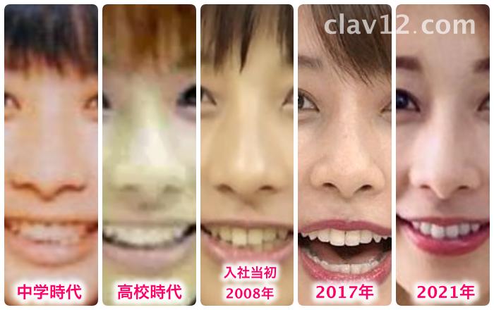 加藤綾子の鼻の変化