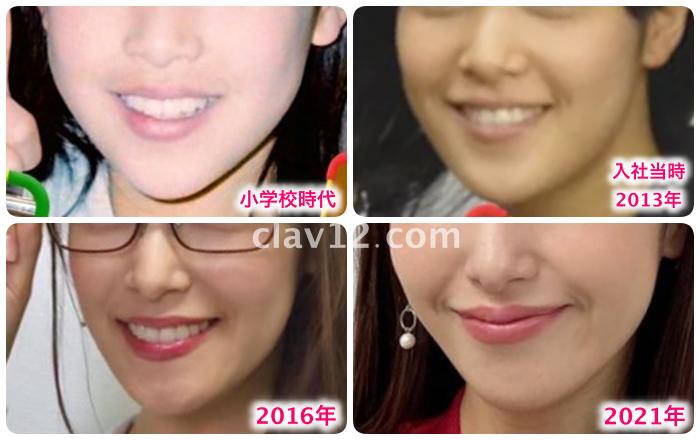 鷲見玲奈の顎の変化