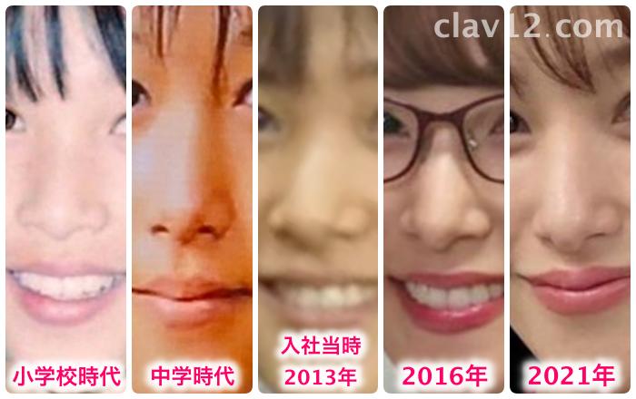 鷲見玲奈の鼻の変化
