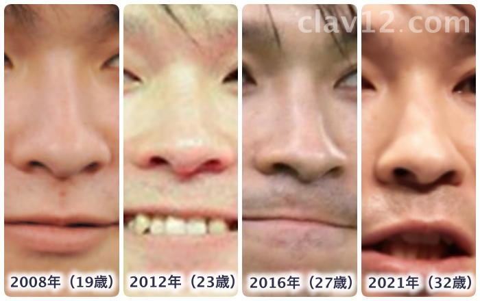 内村航平の鼻の変化