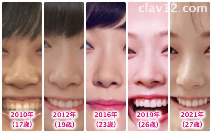 渡辺美優紀の鼻の変化