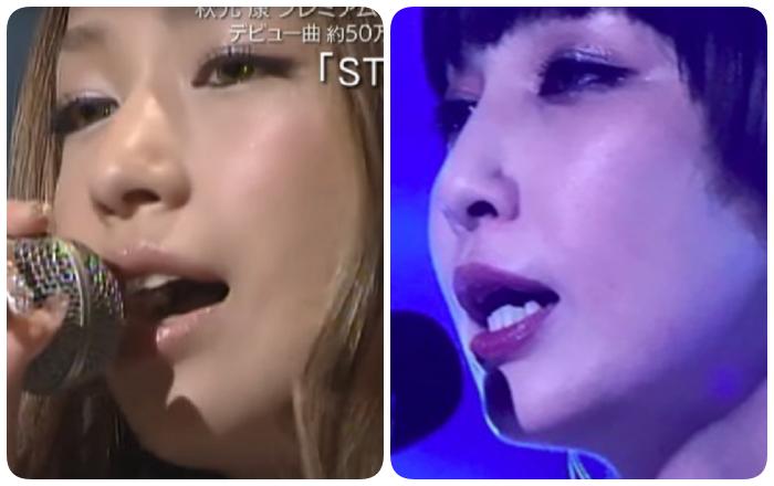 中島美嘉の顎の変化