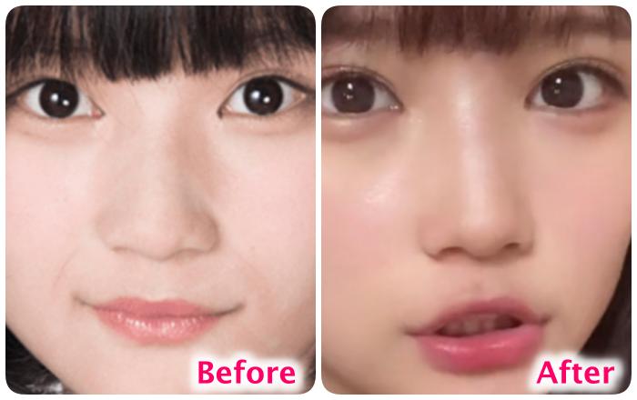 矢作萌夏の鼻の変化
