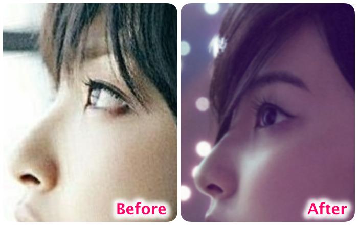 家入レオの鼻の変化