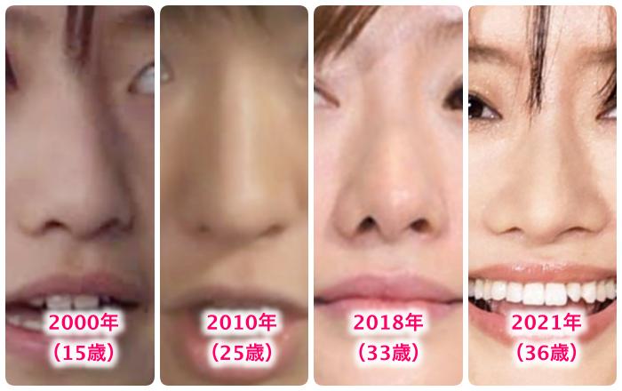 松本まりかの鼻の変化