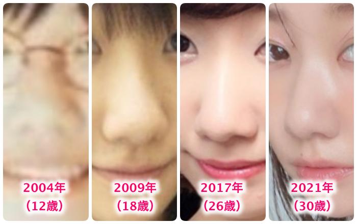 柏木由紀の鼻の変化
