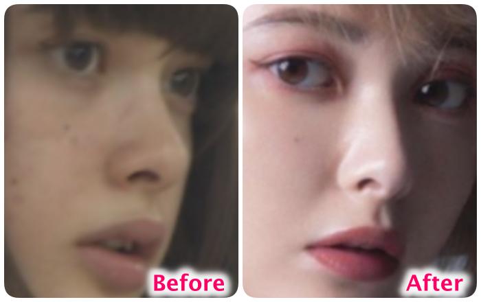 玉城ティナの鼻の変化