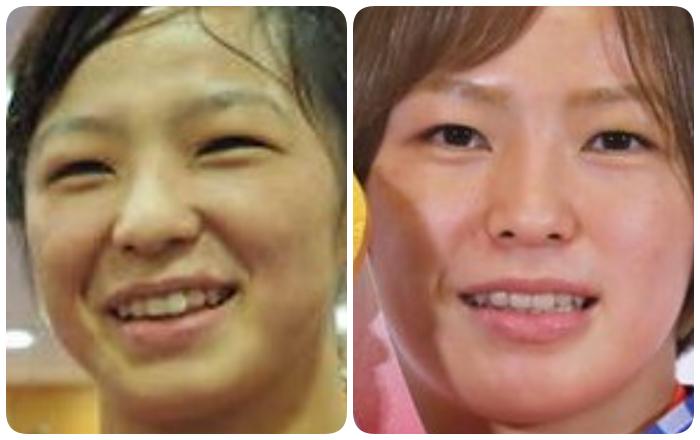 川井友香子の鼻の変化