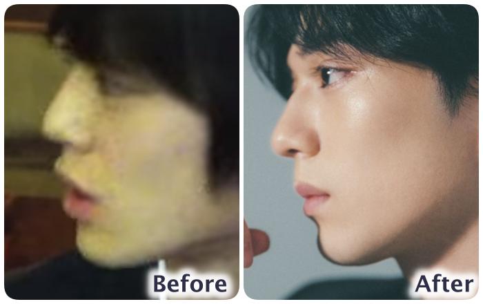 新田真剣佑の鼻の変化