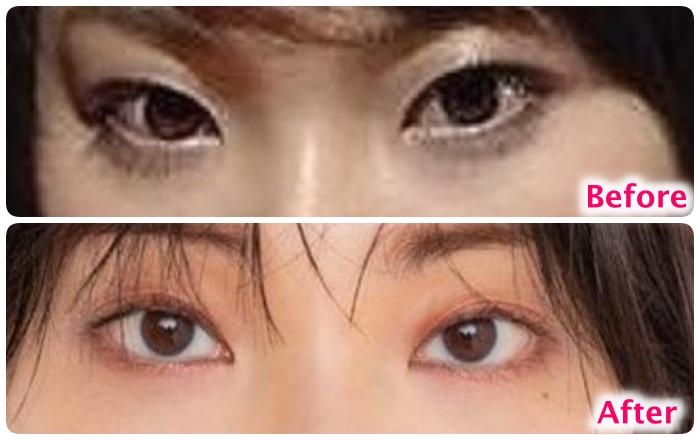 家入レオの目の変化