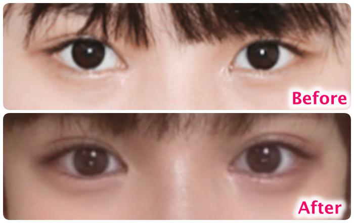 矢作萌夏の目の変化