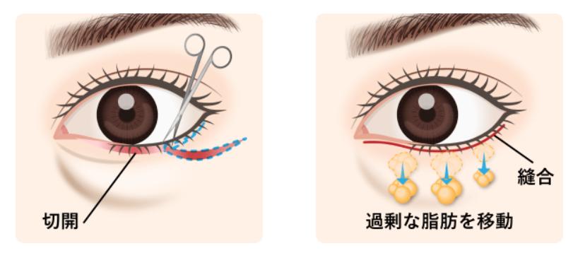 下眼瞼切開術(ハムラ法)