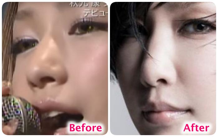 中島美嘉の鼻の変化
