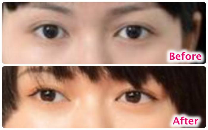 二階堂ふみの目の比較