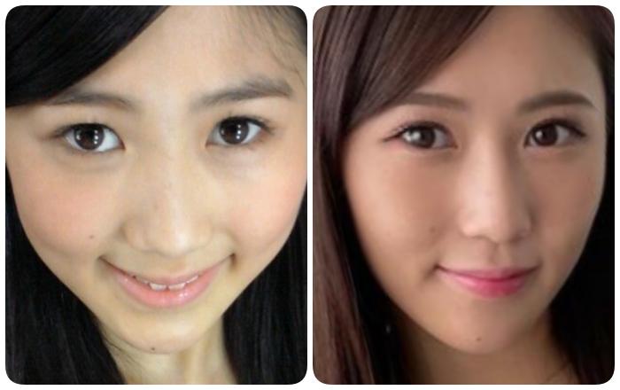 西野未姫の顎の比較