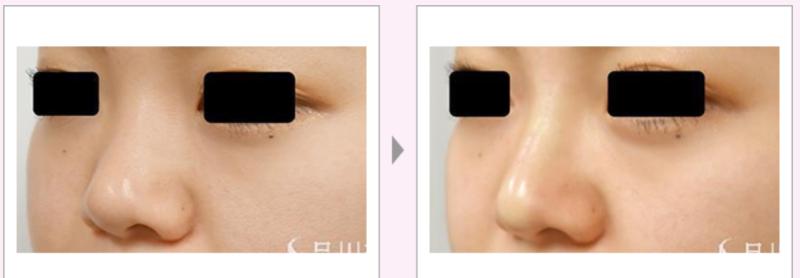 プチ隆鼻術